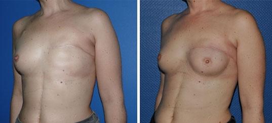 Resultat reconstruction mammaire