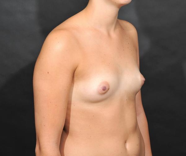 Photo avant augmentation mammaire par lipofilling